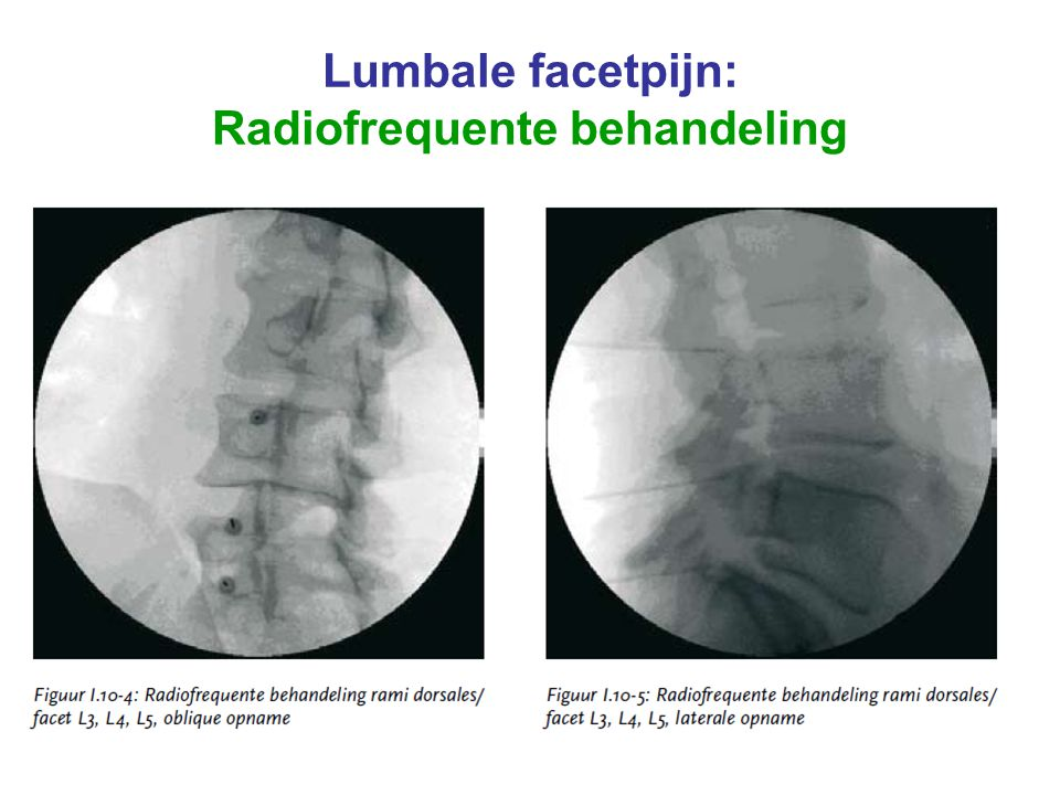 Lumbale facetpijn: Radiofrequente behandeling