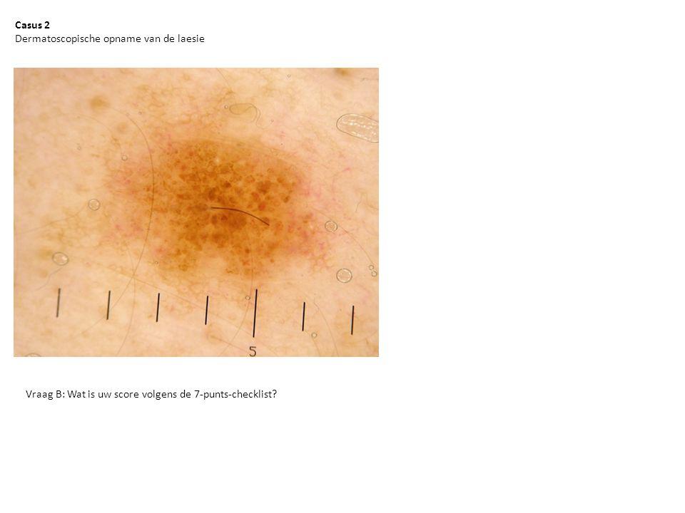Casus 2 Dermatoscopische opname van de laesie.