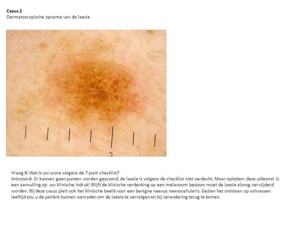 Casus 2 Dermatoscopische opname van de laesie. Vraag B: Wat is uw score volgens de 7 punt checklist
