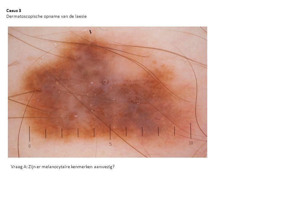 Casus 3 Dermatoscopische opname van de laesie Vraag A: Zijn er melanocytaire kenmerken aanwezig
