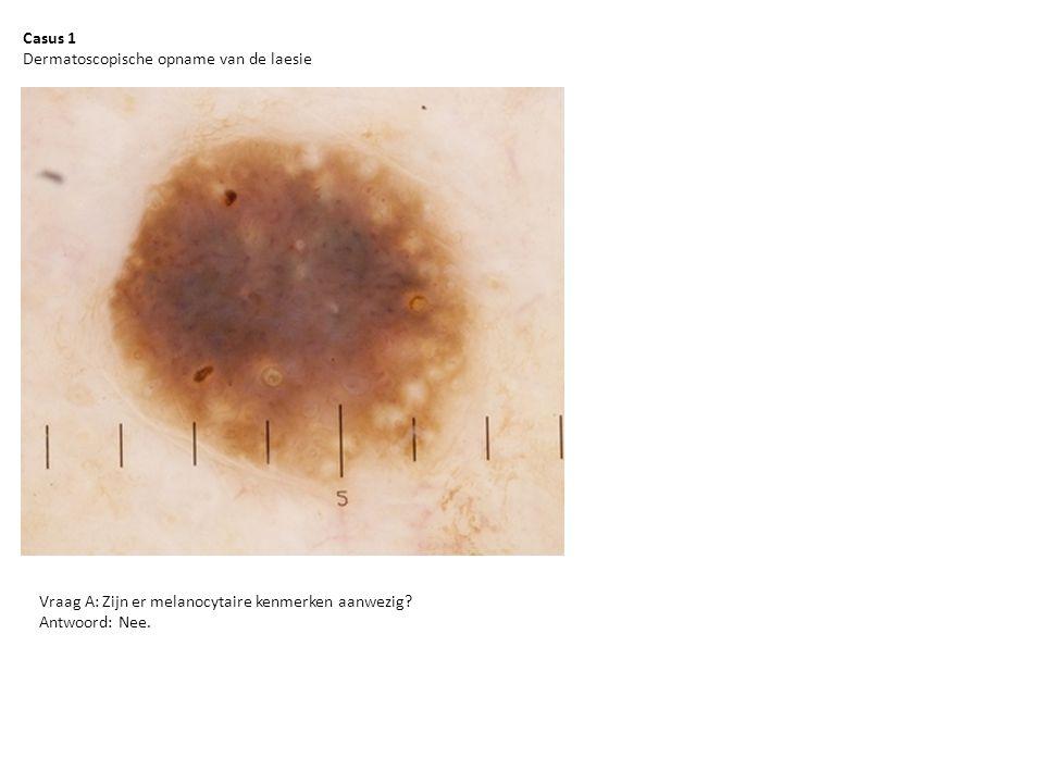 Casus 1 Dermatoscopische opname van de laesie. Vraag A: Zijn er melanocytaire kenmerken aanwezig.