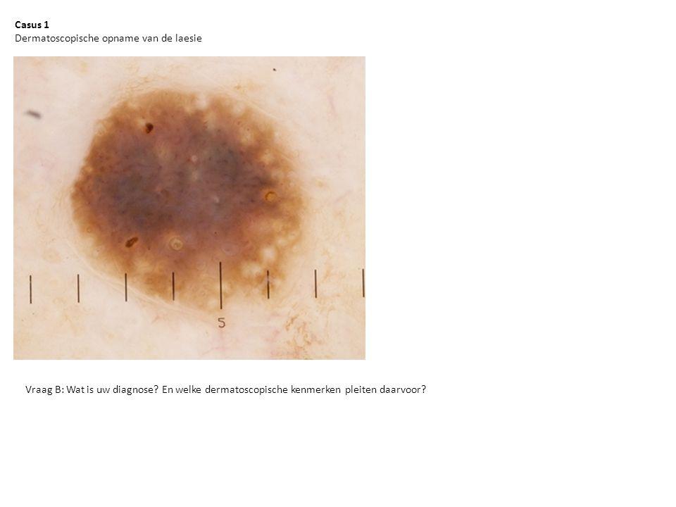 Casus 1 Dermatoscopische opname van de laesie. Vraag B: Wat is uw diagnose.