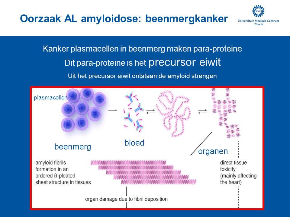 Oorzaak AL amyloidose: beenmergkanker