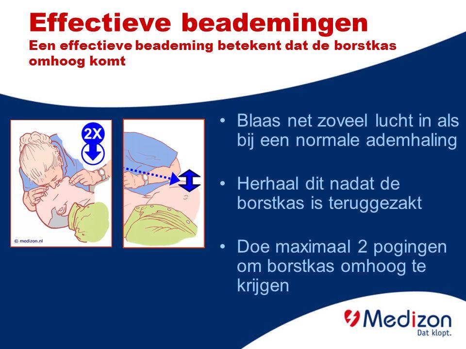 Effectieve beademingen Een effectieve beademing betekent dat de borstkas omhoog komt