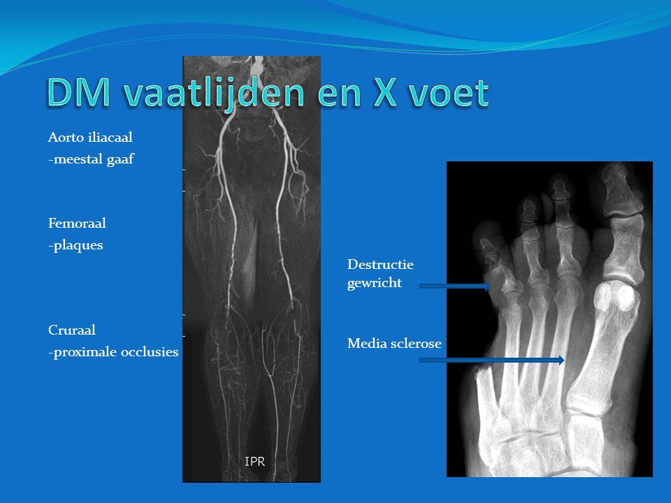 DM vaatlijden en X voet Aorto iliacaal -meestal gaaf Femoraal -plaques