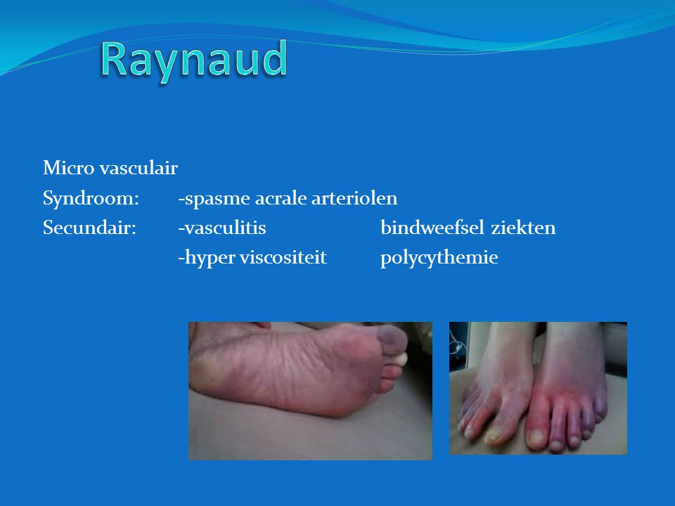 Raynaud Micro vasculair Syndroom: -spasme acrale arteriolen