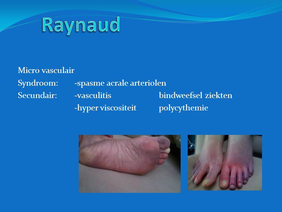 Raynaud Micro vasculair Syndroom: -spasme acrale arteriolen