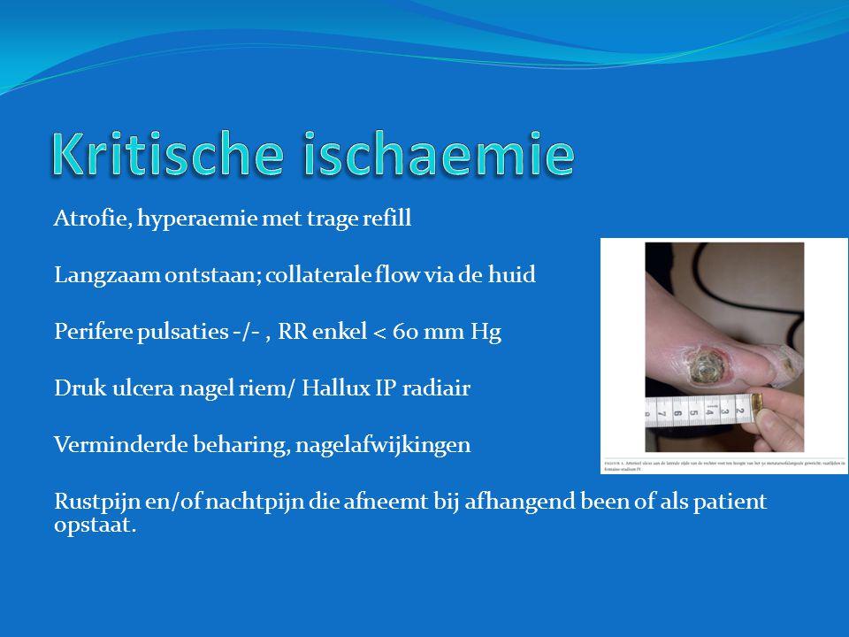 Kritische ischaemie Atrofie, hyperaemie met trage refill