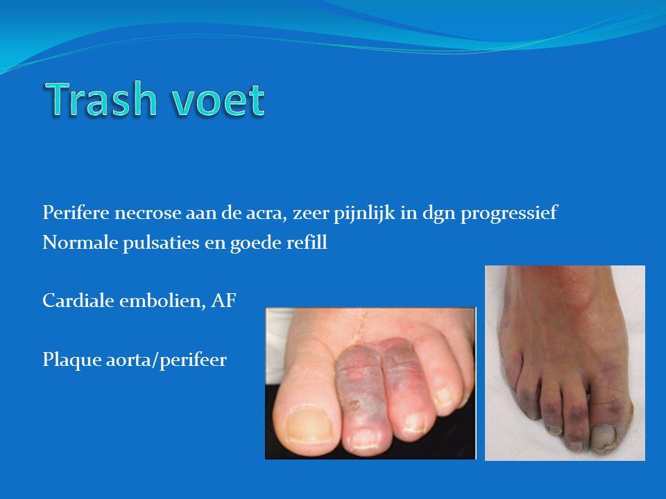 Trash voet Perifere necrose aan de acra, zeer pijnlijk in dgn progressief. Normale pulsaties en goede refill.