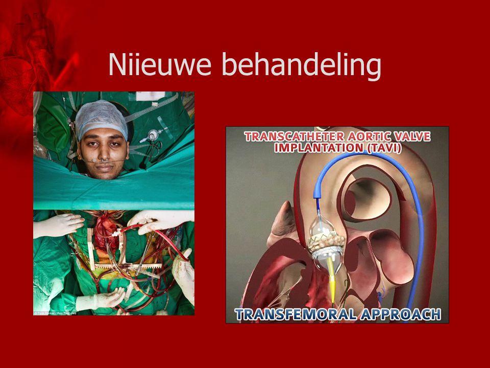 Niieuwe behandeling http://www.dailymail.co.uk/health/article-1250507/Eyes-Wide-Open-Patient-open-heart-surgery-awake.html.