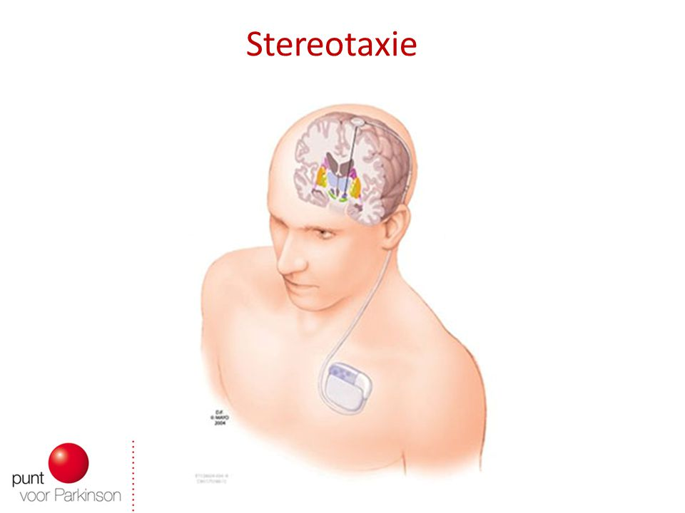Stereotaxie