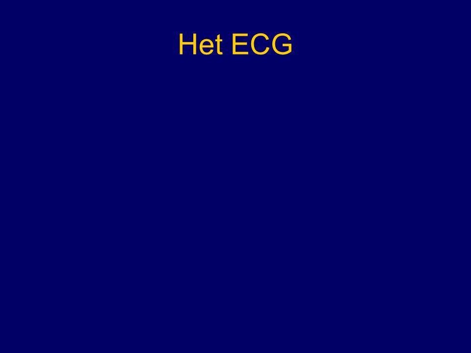Het ECG