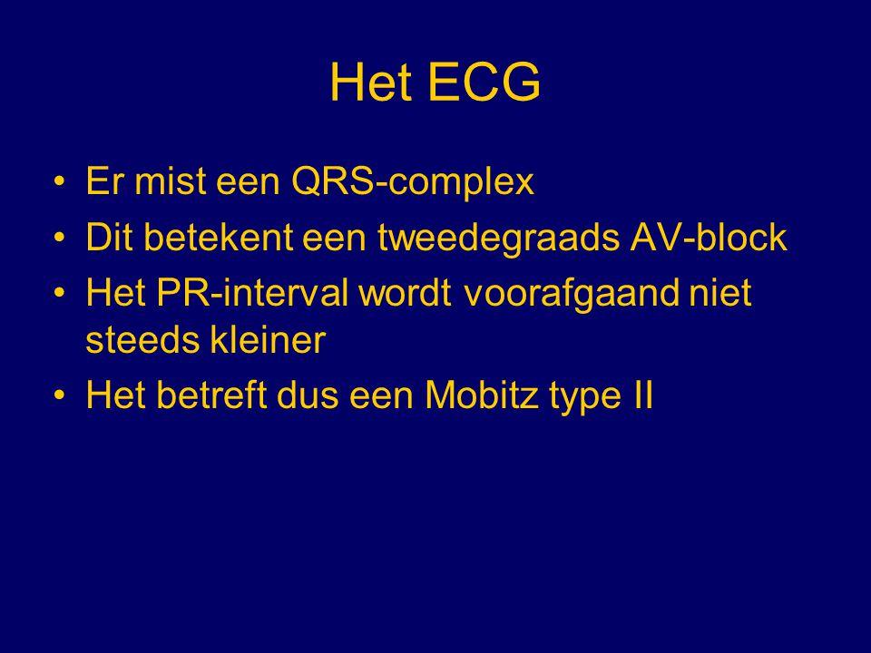 Het ECG Er mist een QRS-complex Dit betekent een tweedegraads AV-block