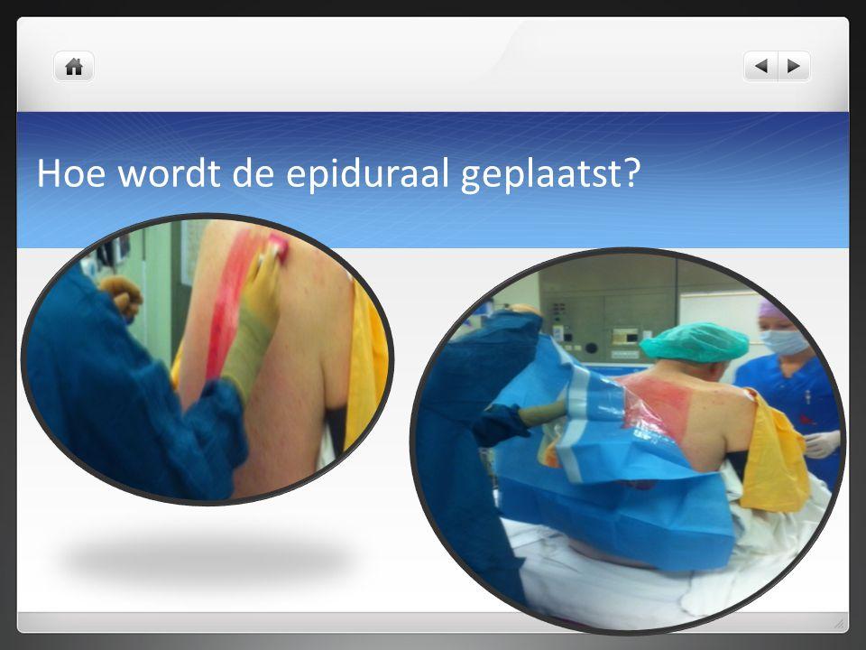 Hoe wordt de epiduraal geplaatst