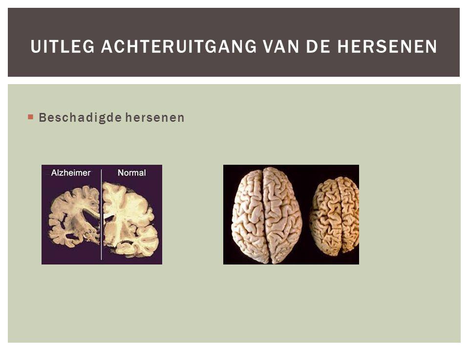 Uitleg achteruitgang van de hersenen