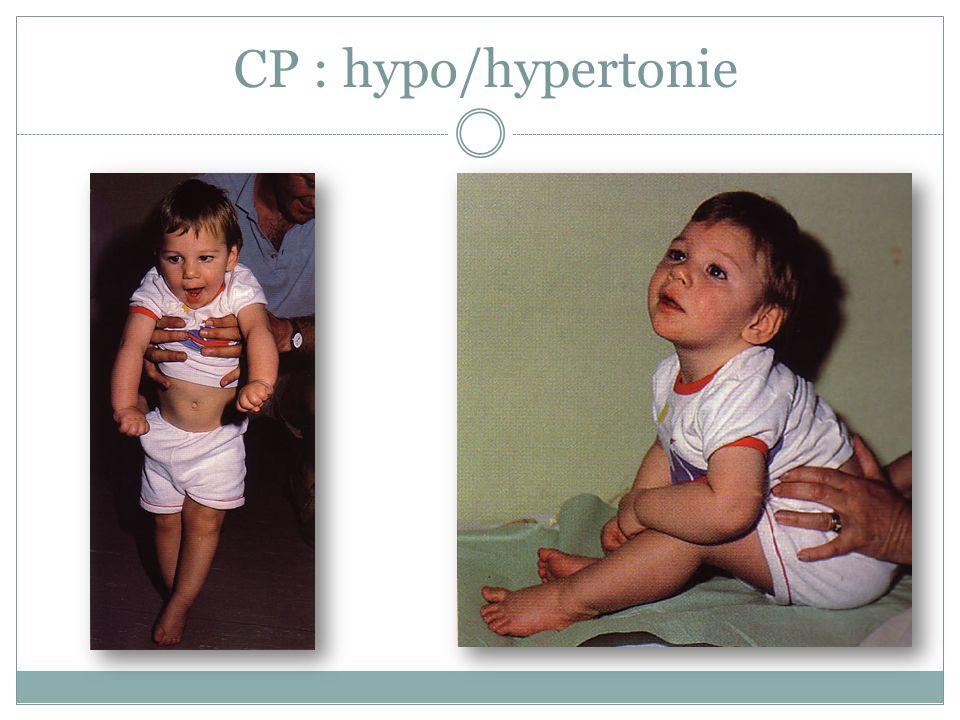 CP : hypo/hypertonie