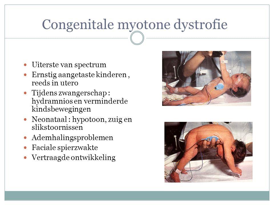 Congenitale myotone dystrofie