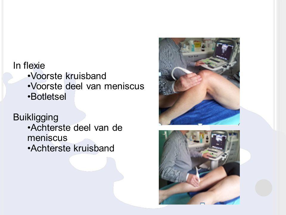 In flexie Voorste kruisband. Voorste deel van meniscus. Botletsel. Buikligging. Achterste deel van de meniscus.