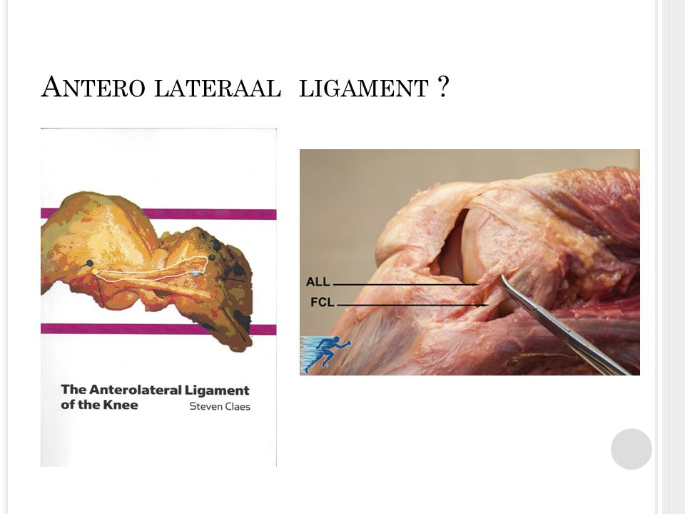 Antero lateraal ligament