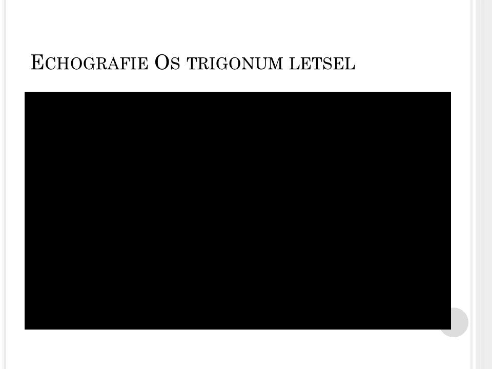 Echografie Os trigonum letsel