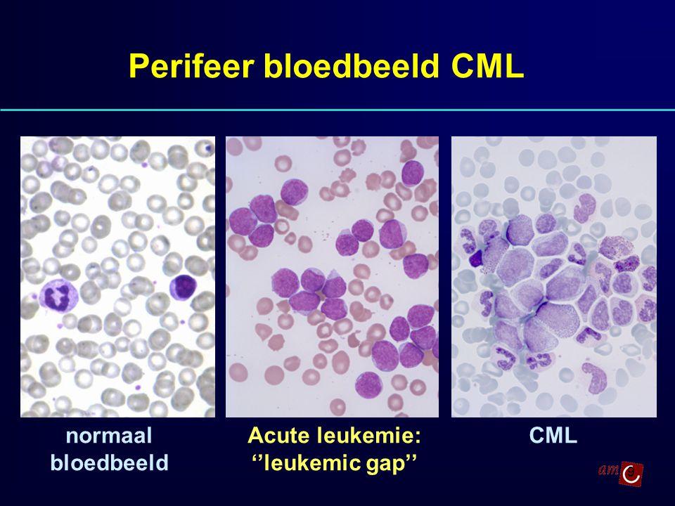 Perifeer bloedbeeld CML Acute leukemie: ''leukemic gap''