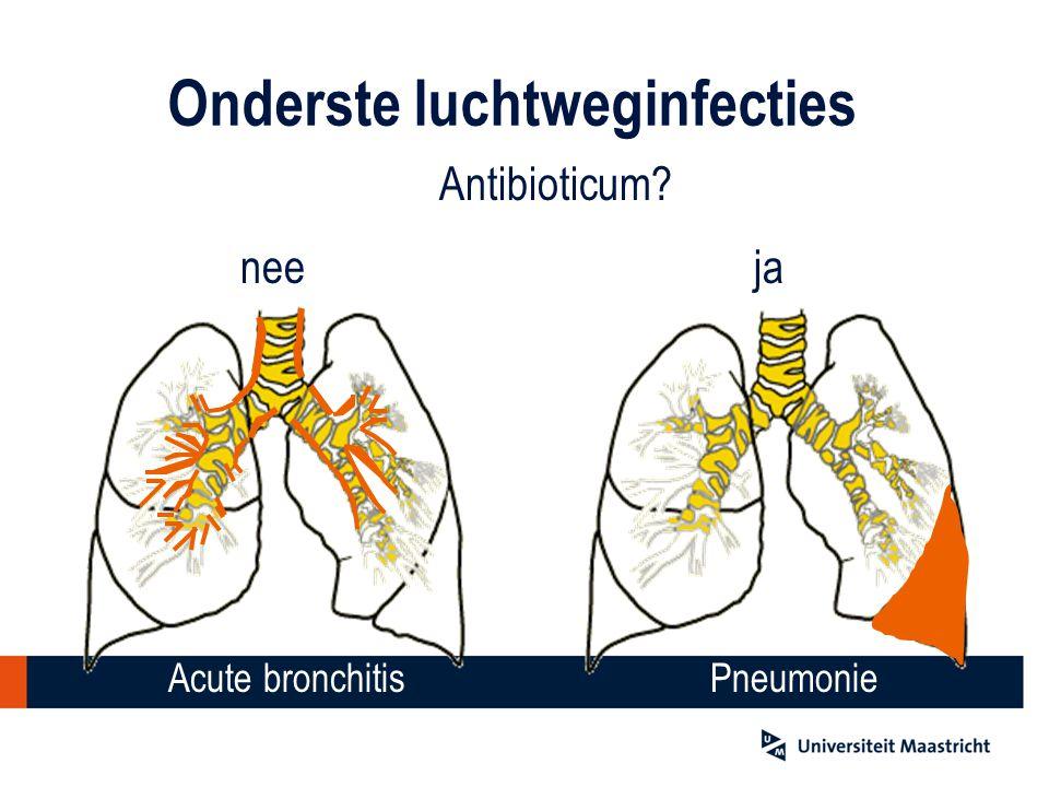 Onderste luchtweginfecties