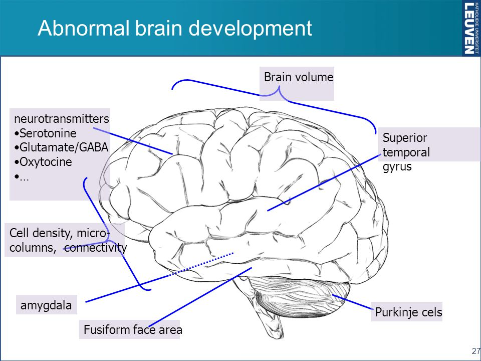 Abnormal brain development