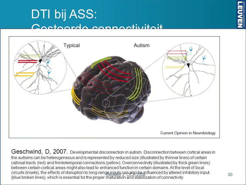 DTI bij ASS: Gestoorde connectiviteit