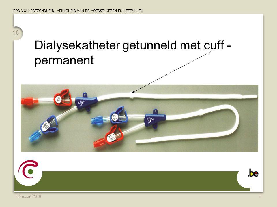 Dialysekatheter getunneld met cuff - permanent