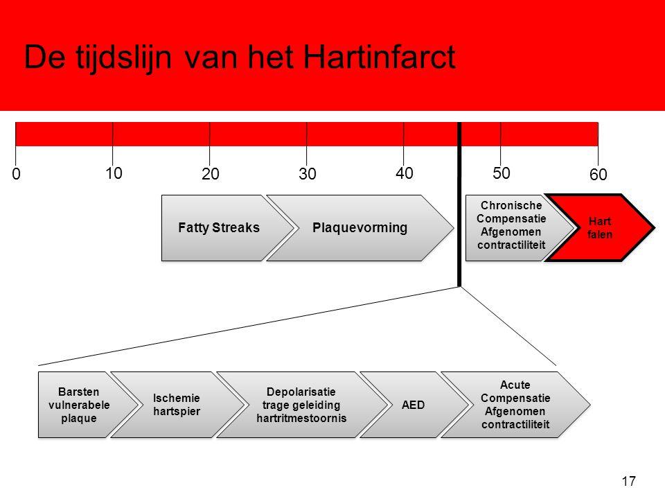De tijdslijn van het Hartinfarct