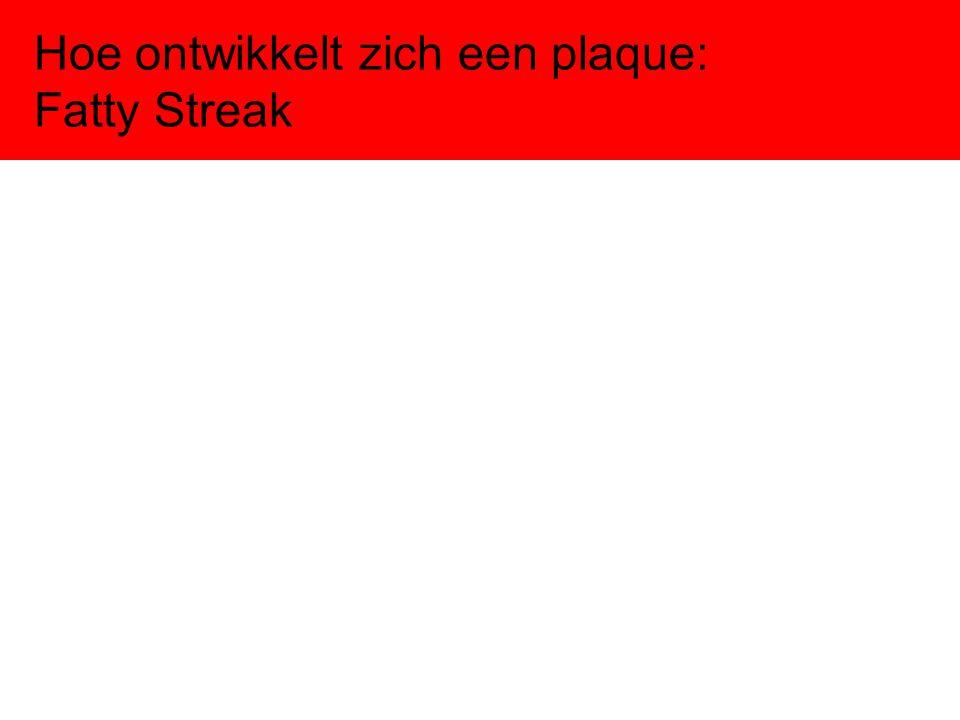 Hoe ontwikkelt zich een plaque: Fatty Streak