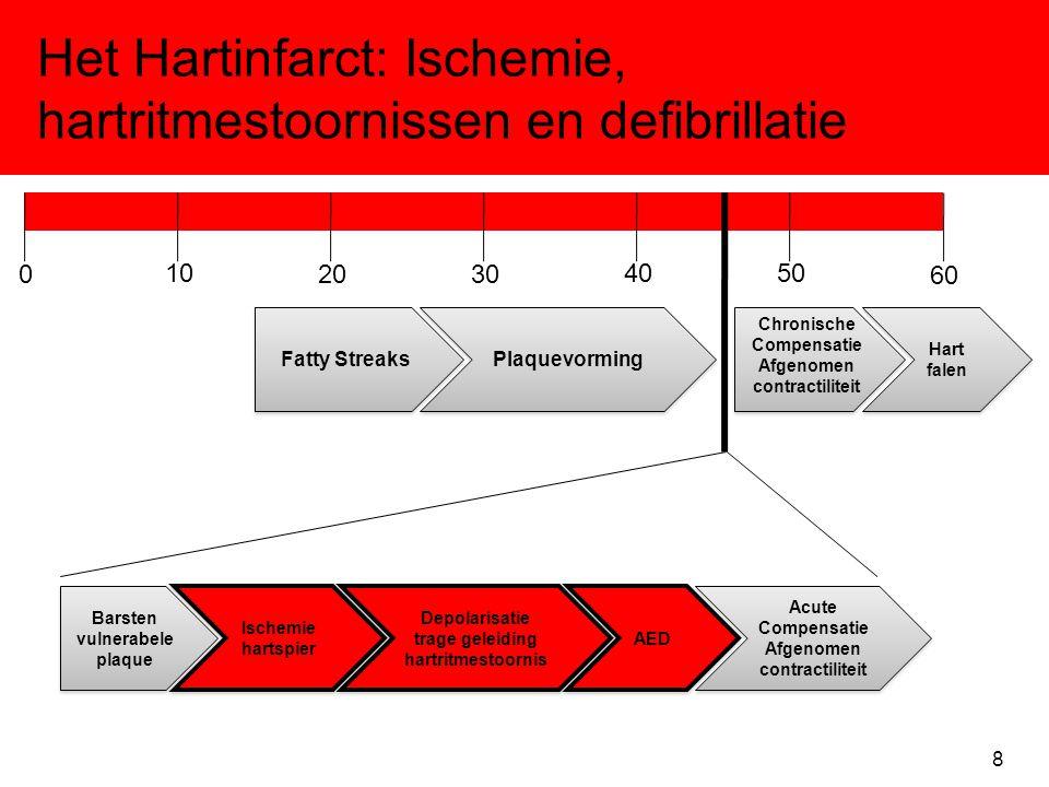 Het Hartinfarct: Ischemie, hartritmestoornissen en defibrillatie