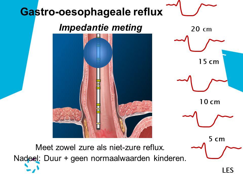 Gastro-oesophageale reflux