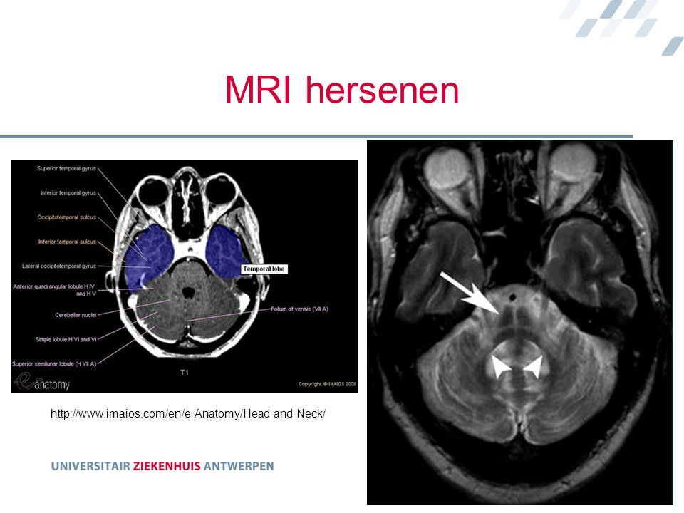 MRI hersenen http://www.imaios.com/en/e-Anatomy/Head-and-Neck/