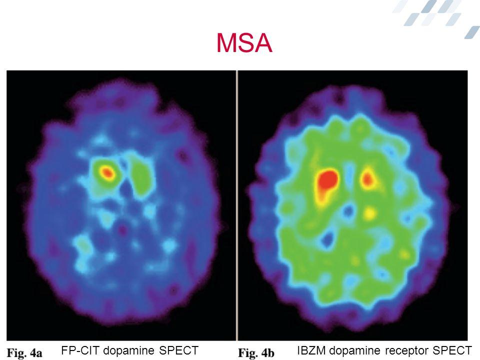 MSA FP-CIT dopamine SPECT IBZM dopamine receptor SPECT