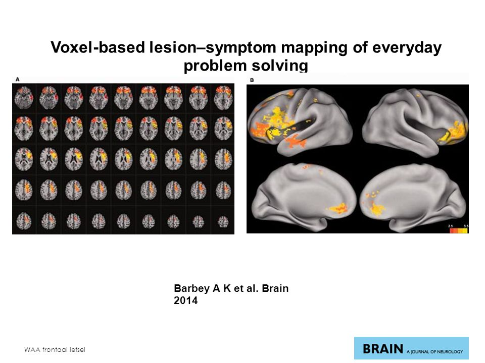Voxel-based lesion–symptom mapping of everyday problem solving