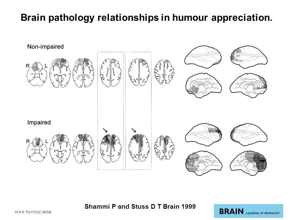 Brain pathology relationships in humour appreciation.