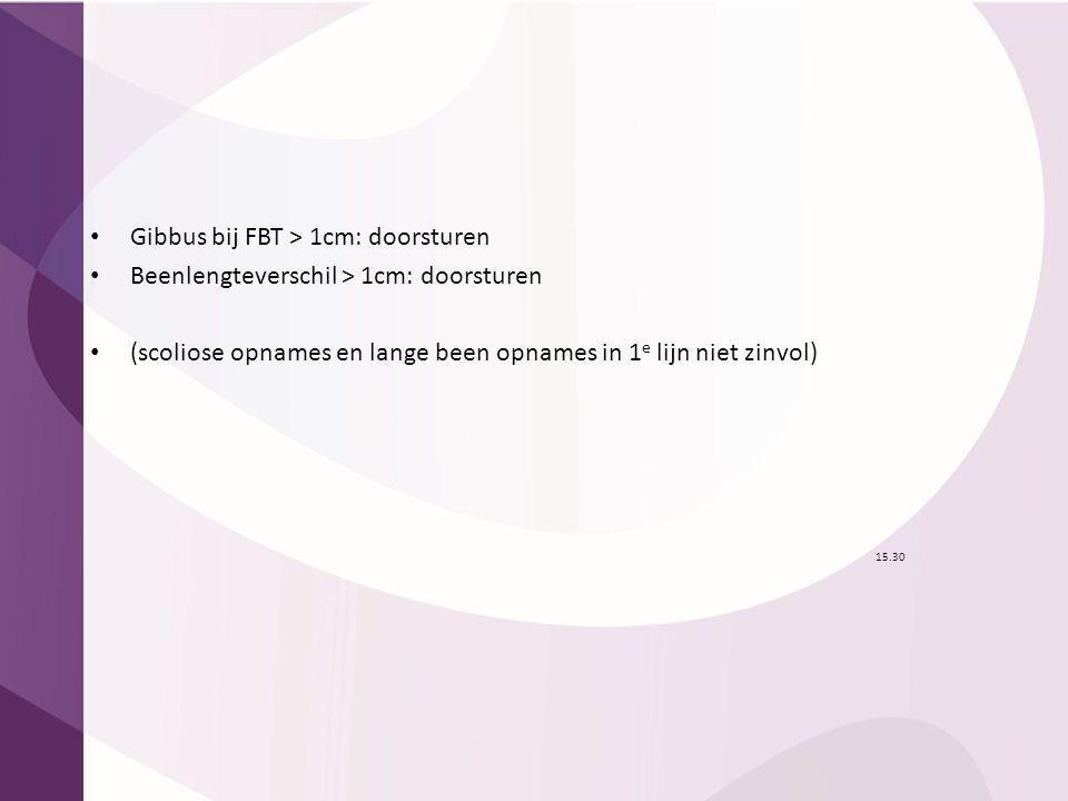 15.30 Gibbus bij FBT > 1cm: doorsturen