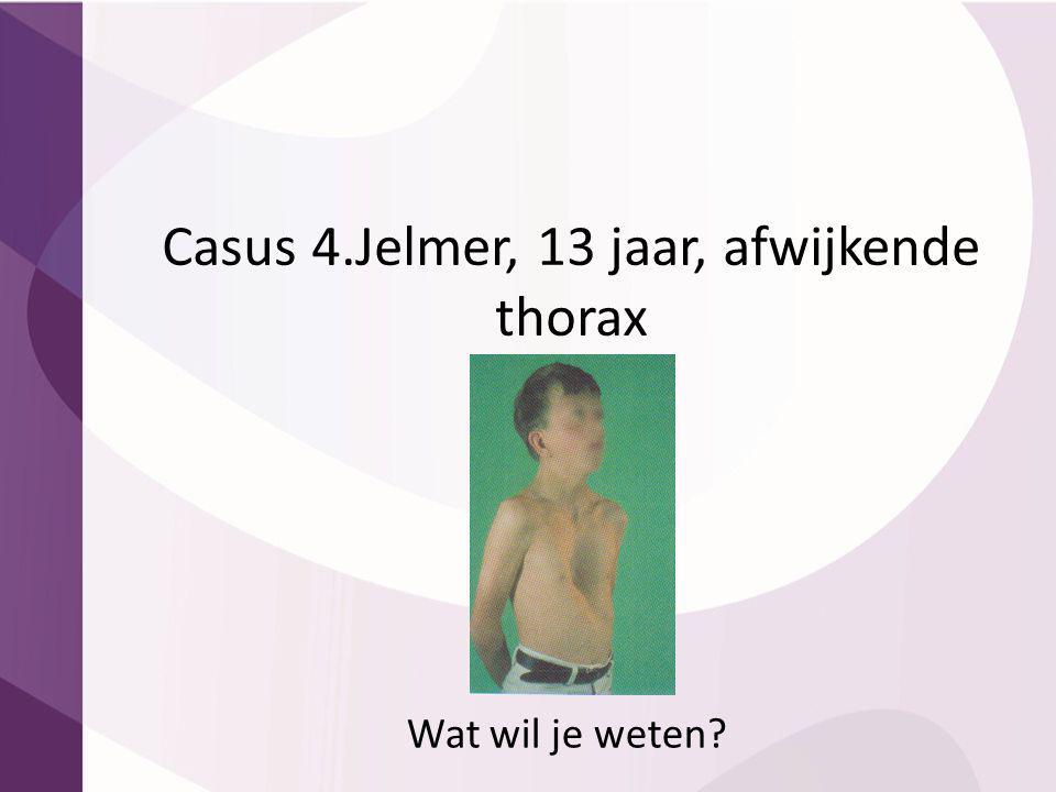 Casus 4.Jelmer, 13 jaar, afwijkende thorax