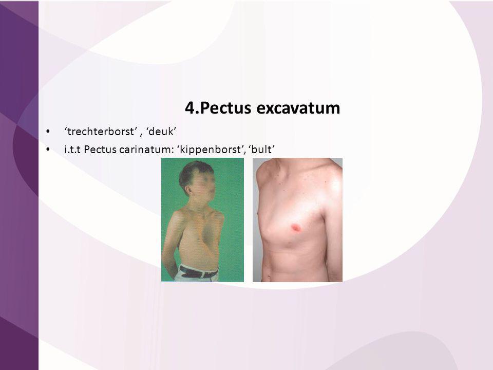 4.Pectus excavatum 'trechterborst' , 'deuk'