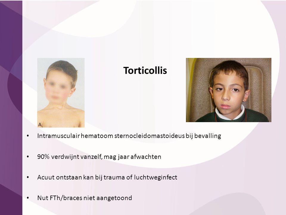 Torticollis Intramusculair hematoom sternocleidomastoideus bij bevalling. 90% verdwijnt vanzelf, mag jaar afwachten.
