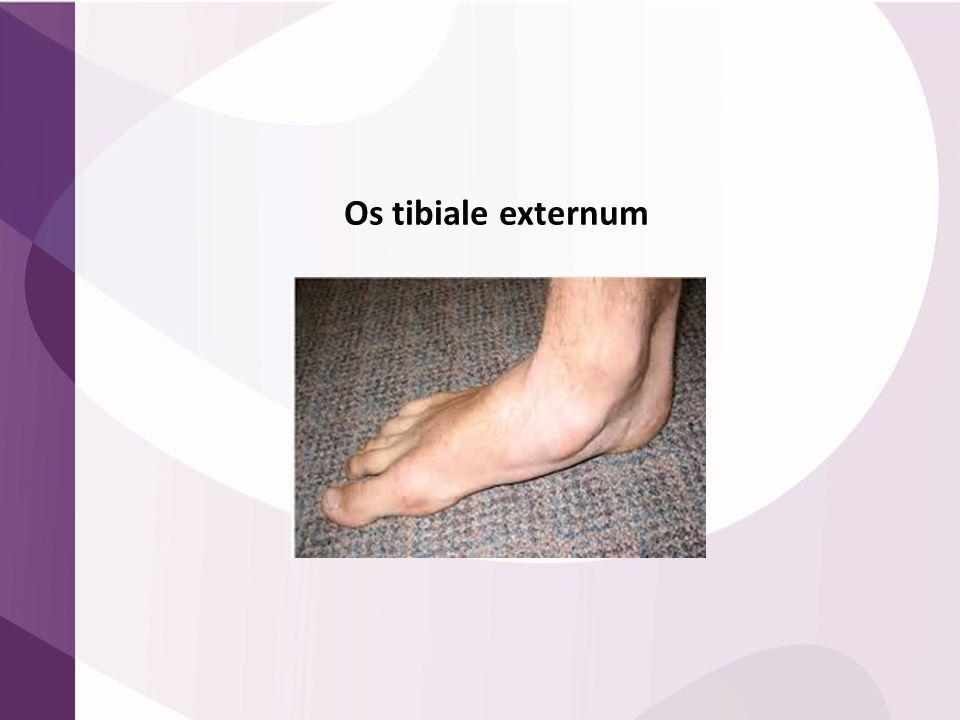 Os tibiale externum