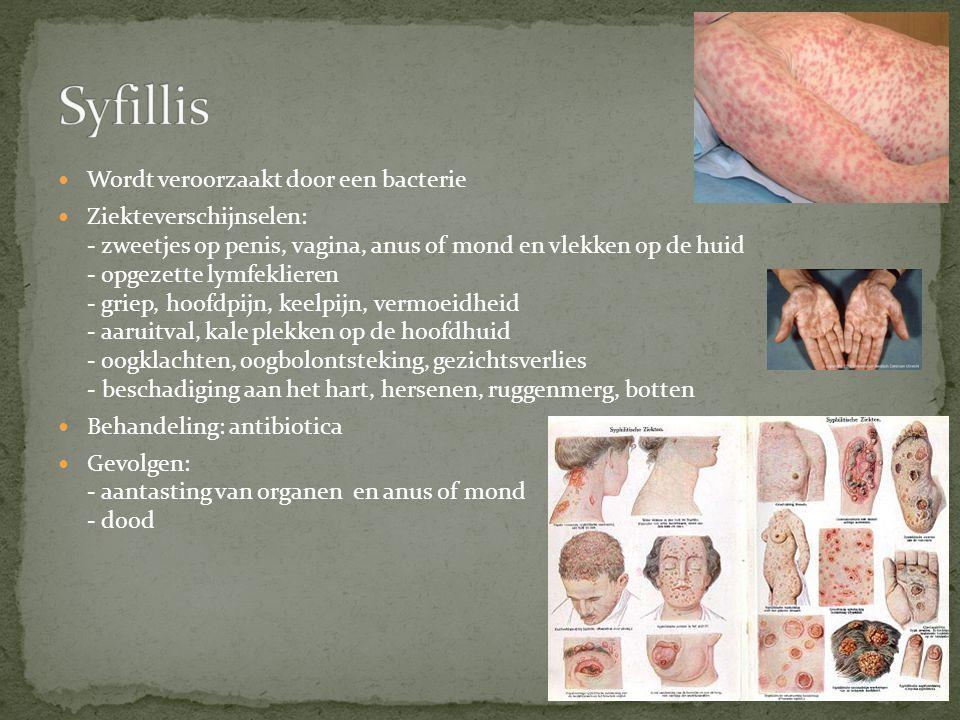 Syfillis Wordt veroorzaakt door een bacterie