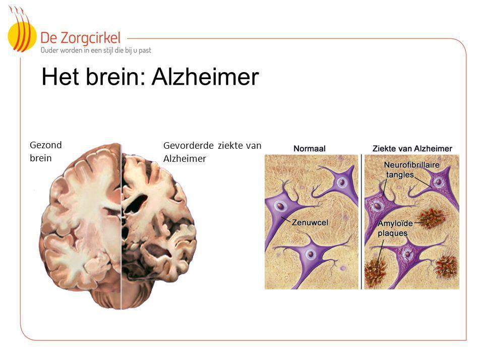 Het brein: Alzheimer Gezond brein Gevorderde ziekte van Alzheimer