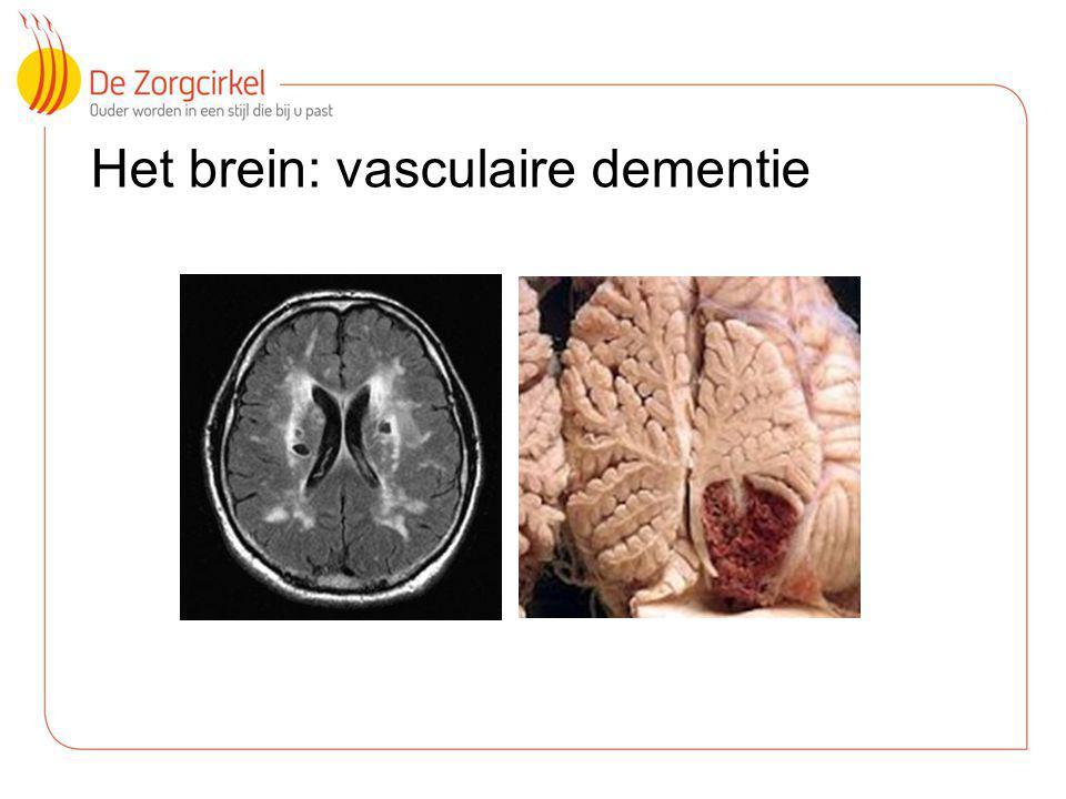 Het brein: vasculaire dementie