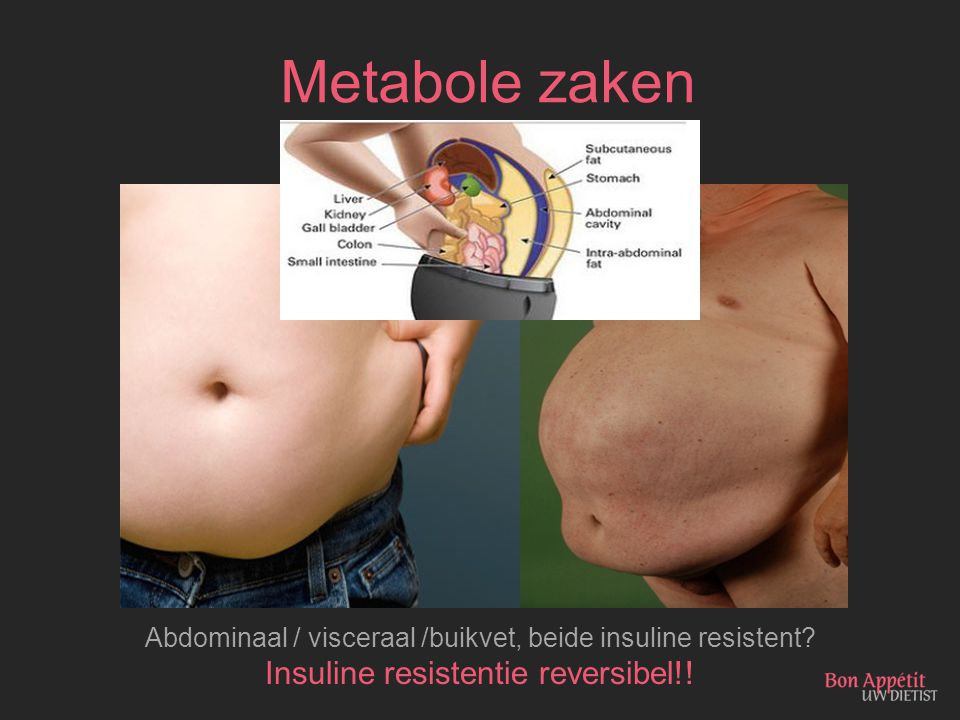 Metabole zaken Insuline resistentie reversibel!!