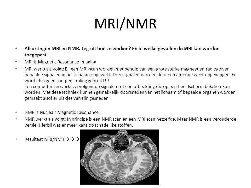 MRI/NMR Afkortingen MRI en NMR. Leg uit hoe ze werken En in welke gevallen de MRI kan worden toegepast.