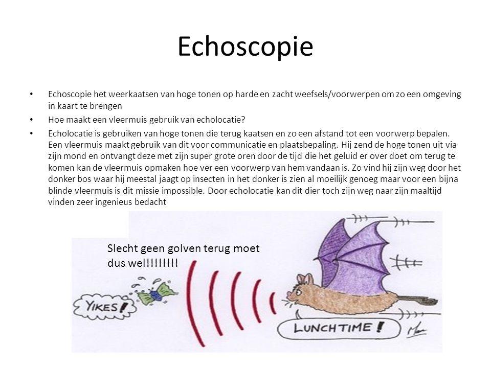 Echoscopie Slecht geen golven terug moet dus wel!!!!!!!!