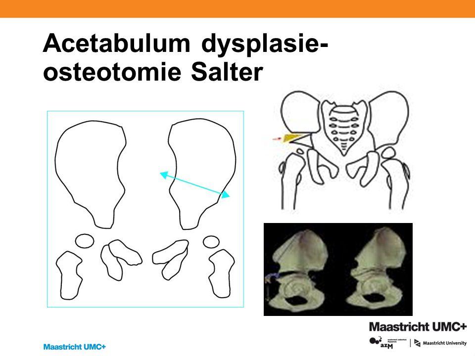 Acetabulum dysplasie- osteotomie Salter