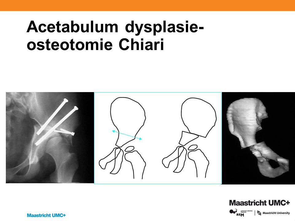 Acetabulum dysplasie- osteotomie Chiari